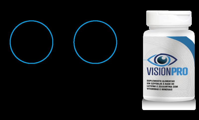 Vison Pro